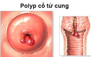 triệu chứng polyp cổ tử cung