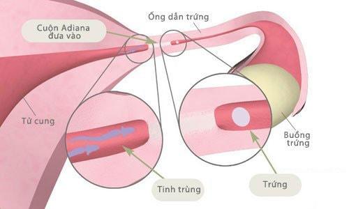 Tắc nghẽn vòi trứng