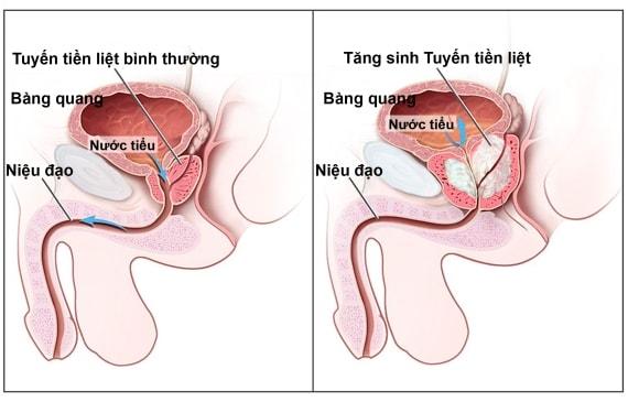 Biểu hiện viêm tuyến tiền liệt ở nam giới